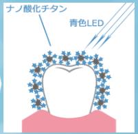 歯にステイン(着色汚れ)に青色LED照射