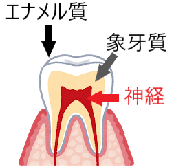 歯のエナメル質に矢印、象牙質に矢印、神経に矢印